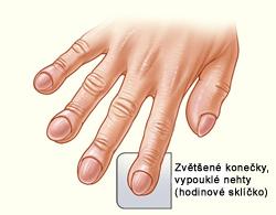 sklíčkové nehty