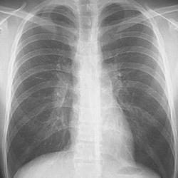 plíce zdravé